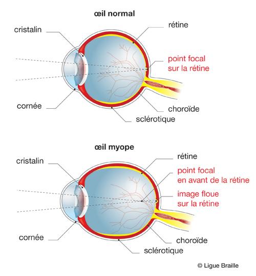myopie forte lentilles